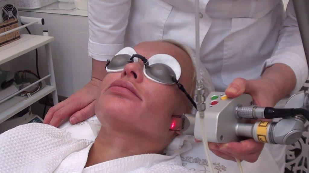 Как проходит процедура лазерной шлифовки